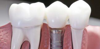 Стоматология: имплантация зубов