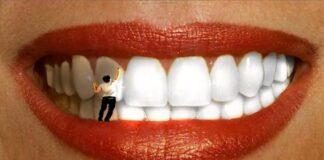 Отбеливание зубов: в каких случаях лучше не проводить