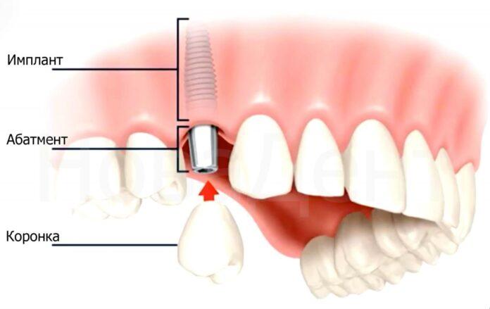 Что такое зубные импланты?